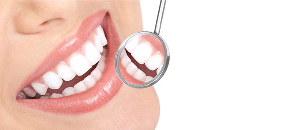 Cosmetic Tooth Filling